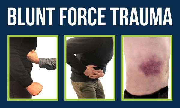 PPSS Blunt Force Trauma Graphic